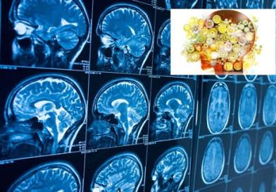Neuroriabilitazione, ospedale di Foligno coordina studio internazionale